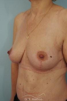 Ptôse des seins vue de quart apres