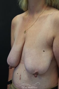 Ptôse des seins vue de quart avant