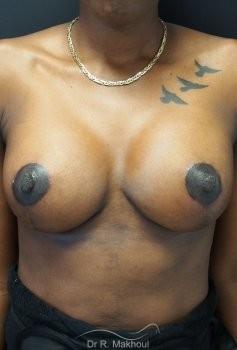 Ptôse mammaire vue de face apres