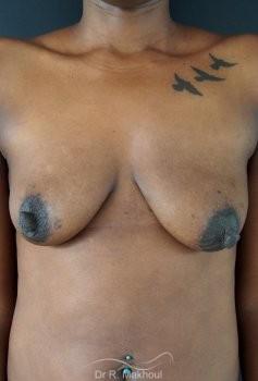 Ptôse mammaire vue de face avant