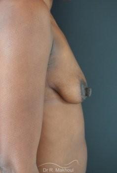 Ptôse mammaire vue de profil avant