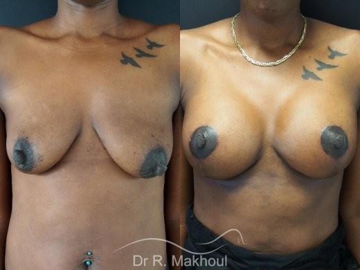 Ptôse mammaire vue de face duo