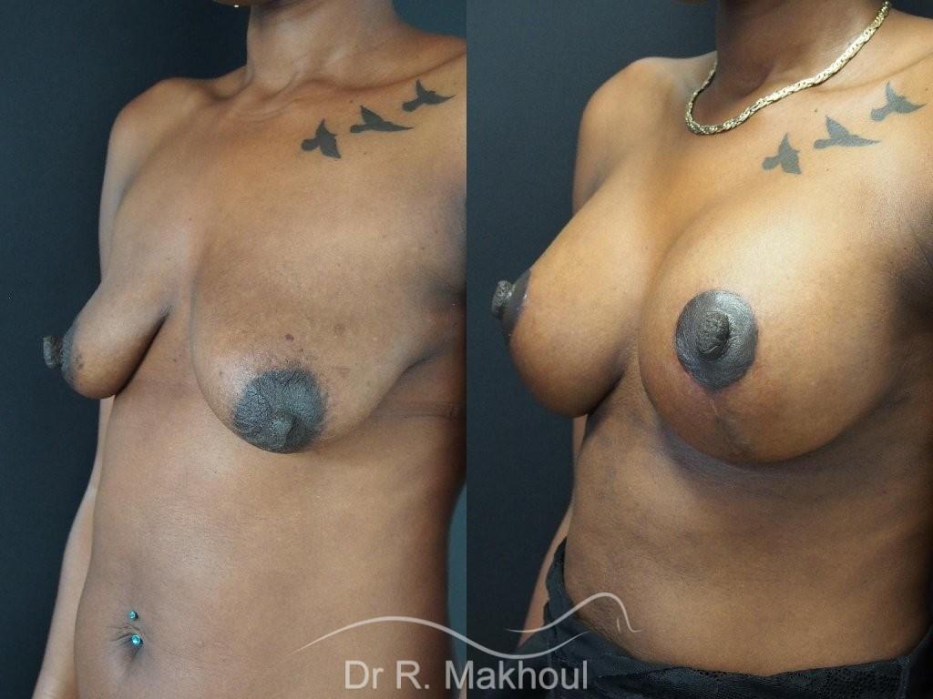 Ptôse mammaire vue de quart duo