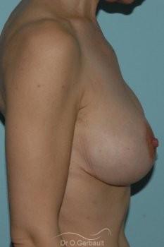 Ptôse mammaire vue de profil apres