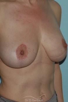 Ptôse mammaire vue de quart apres