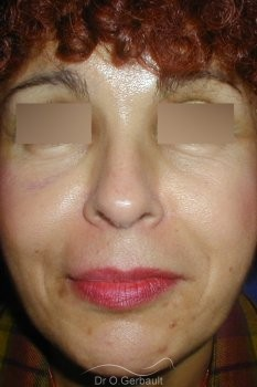 Rajeunissement facial, Lipofilling vue de face apres