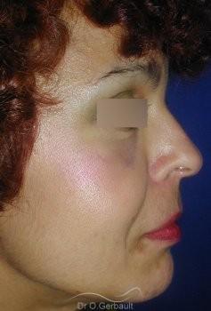 Rajeunissement facial, Lipofilling vue de profil apres