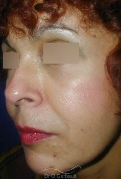 Rajeunissement facial, Lipofilling vue de quart apres