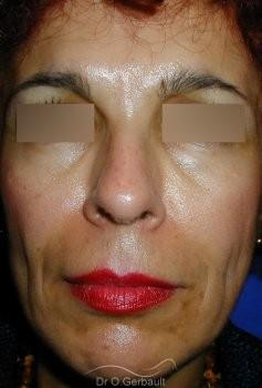 Rajeunissement facial, Lipofilling vue de face avant