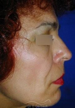 Rajeunissement facial, Lipofilling vue de profil avant