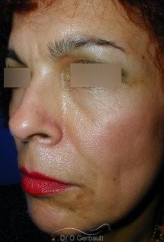 Rajeunissement facial, Lipofilling vue de quart avant