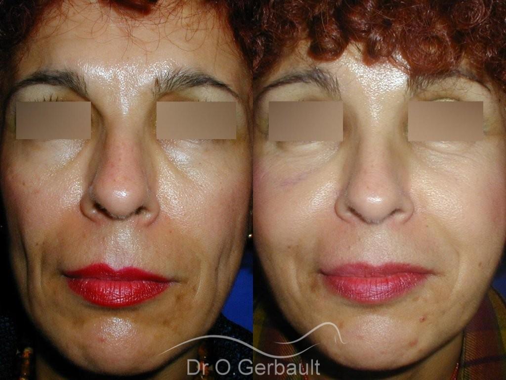 Rajeunissement facial, Lipofilling vue de face duo