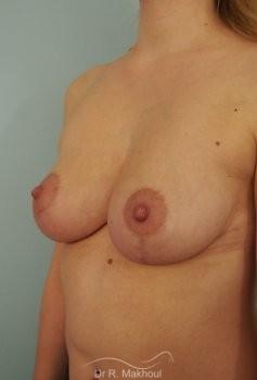 Réduction mammaire bilatérale vue de face apres