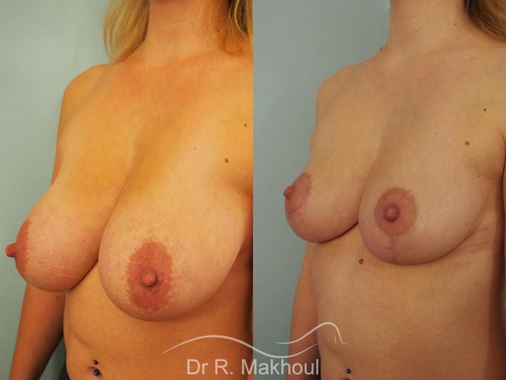 Réduction mammaire bilatérale vue de face avant-apres
