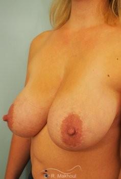Réduction mammaire bilatérale vue de face avant