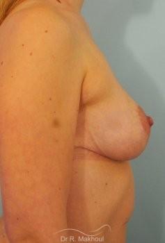 Réduction mammaire bilatérale vue de profil apres