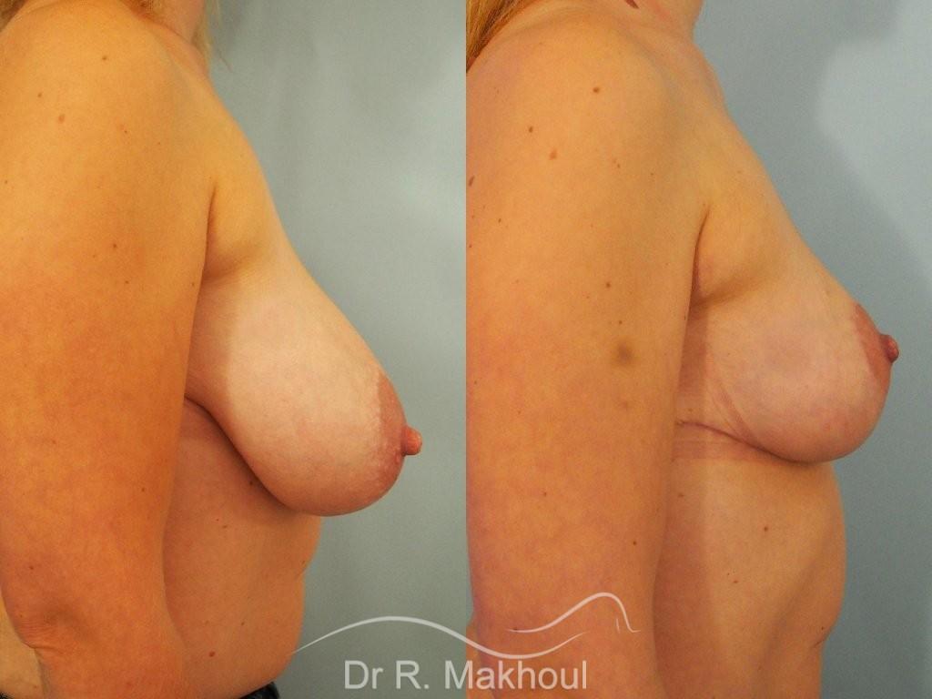 Réduction mammaire bilatérale vue de profil avant-apres