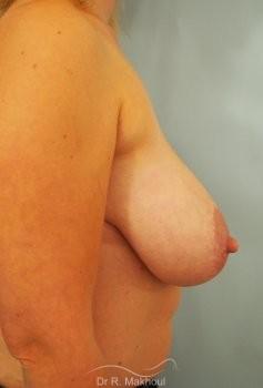 Réduction mammaire bilatérale vue de profil avant