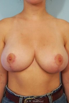 Réduction mammaire et asymétrie vue de face apres
