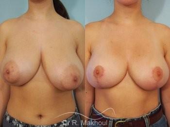 Réduction mammaire et asymétrie vue de face avant-apres