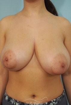 Réduction mammaire et asymétrie vue de face avant