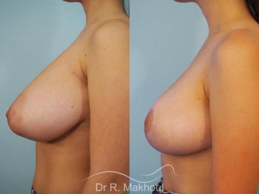 Réduction mammaire et asymétrie vue de profil avant-apres