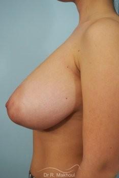 Réduction mammaire et asymétrie vue de profil avant