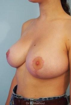 Réduction mammaire et asymétrie vue de quart apres