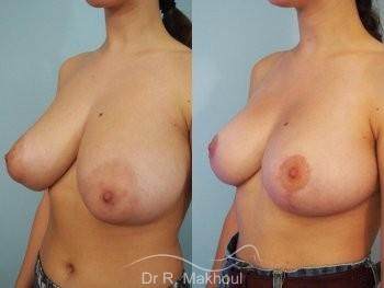 Réduction mammaire et asymétrie vue de quart avant-apres