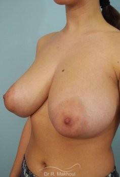 Réduction mammaire et asymétrie vue de quart avant