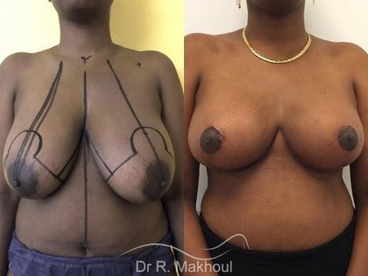 Réduction mammaire vue de face avant-apres