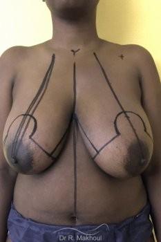 Réduction mammaire vue de face avant