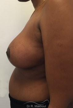Réduction mammaire vue de profil apres