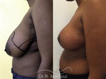 Réduction mammaire vue de profil avant-apres