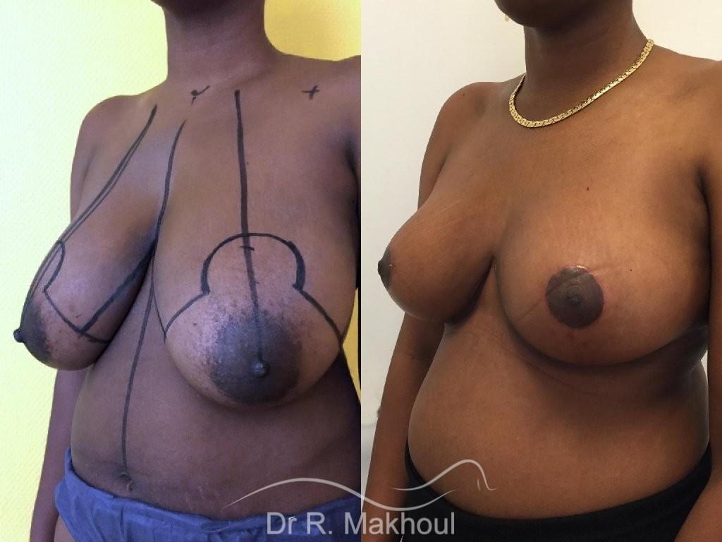 Réduction mammaire vue de quart avant-apres