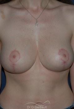 Réduction mammaire vue de face apres