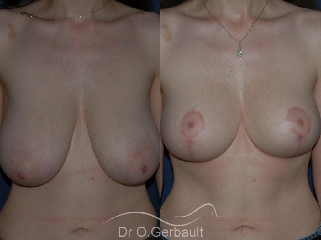 Réduction mammaire vue de face duo