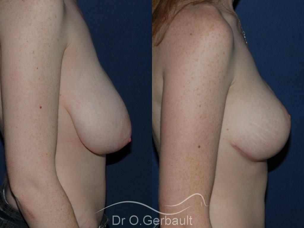 Réduction mammaire vue de profil duo
