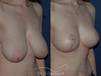 Réduction mammaire vue de quart duo