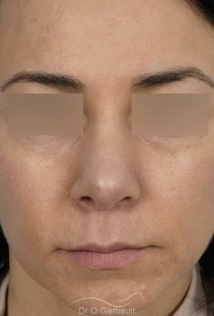 Reprise pointe de nez ratée vue de face apres