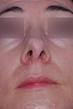Reprise pointe de nez ratée vue de face avant