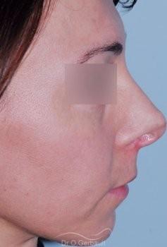 Reprise pointe de nez ratée vue de profil avant