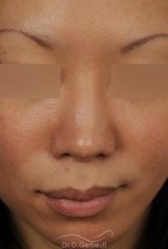 Rhinoplastie Asiatique par Dr Gerbault vue de face apres