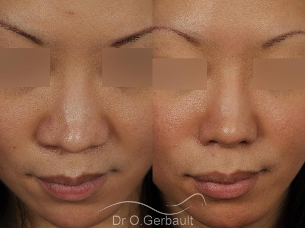 Rhinoplastie Asiatique par Dr Gerbault vue de face avant-apres