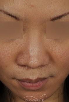 Rhinoplastie Asiatique par Dr Gerbault vue de face avant