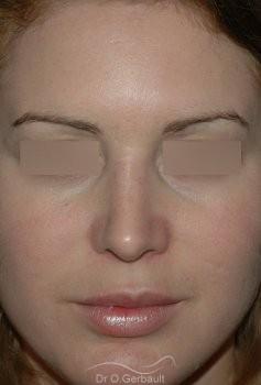 Rhinoplastie, bosse sur le nez vue de face apres