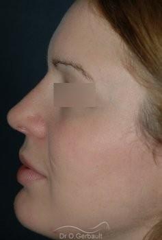 Rhinoplastie, bosse sur le nez vue de profil apres