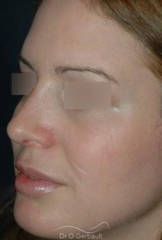 Rhinoplastie, bosse sur le nez vue de quart apres