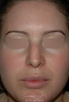 Rhinoplastie, bosse sur le nez vue de face avant