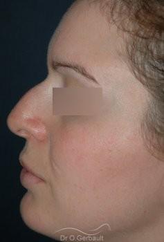 Rhinoplastie, bosse sur le nez vue de profil avant